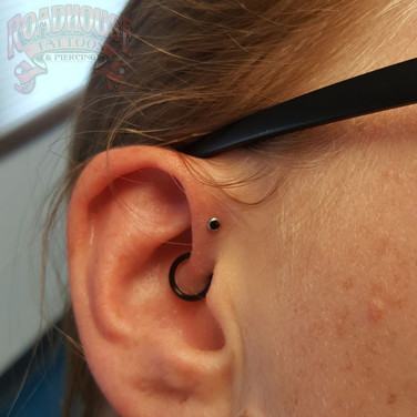 Forward Helix and Healed Daith