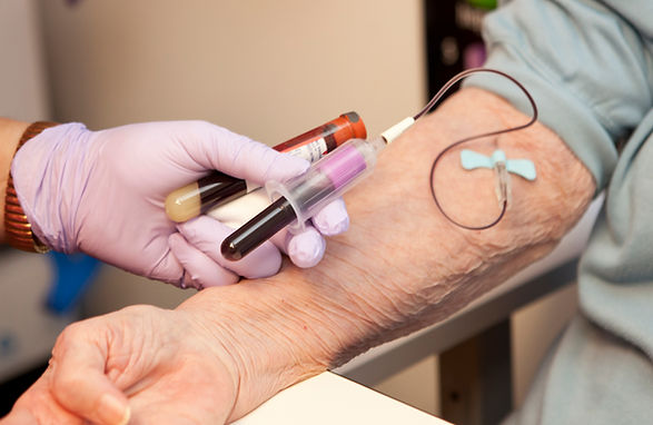Blood being drawn, donated or for testin