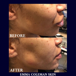 Cheek and Jawline Sculpting