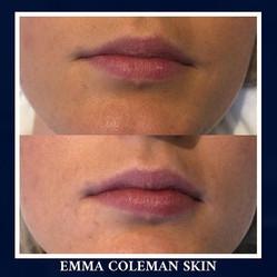 1ml of Lip Dermal Filler