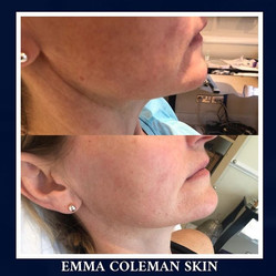 Jawline and lower face sculpting using botulinum toxin