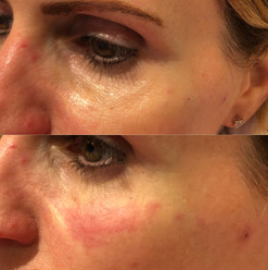 Tear trough (under eye) treatment with dermal filler