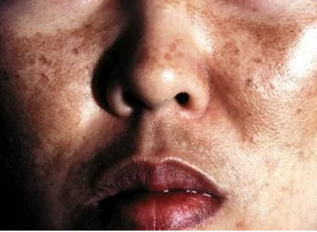 HYPER PIGMENTATION & MELASMA: CAUSES AND TREATMENTS