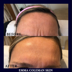 Frown line reduction using Botulinum Toxin