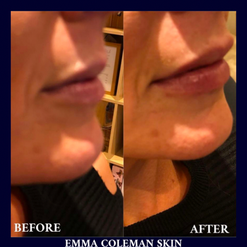 Lip Reshape and Plump