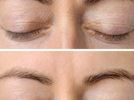 CAN BOTOX MAKE YOUR EYELIDS HEAVY?