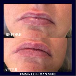 Lip Plumping Treatment