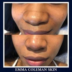 Slimming of the nose using dermal filler