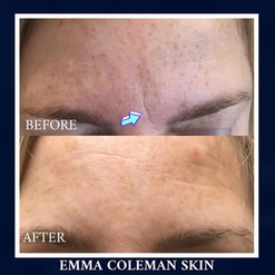 Frown line treatmentt with dermal filler