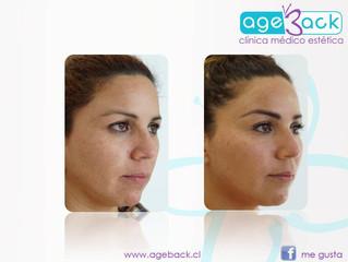 HIFU, Revolucionario tratamiento para Lifting Facial en una sesión, Aprobado por la FDA.