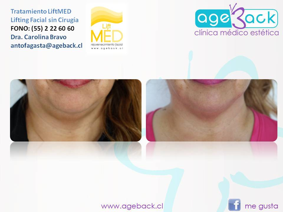 LiftMED AgeBack Antofagasta 02