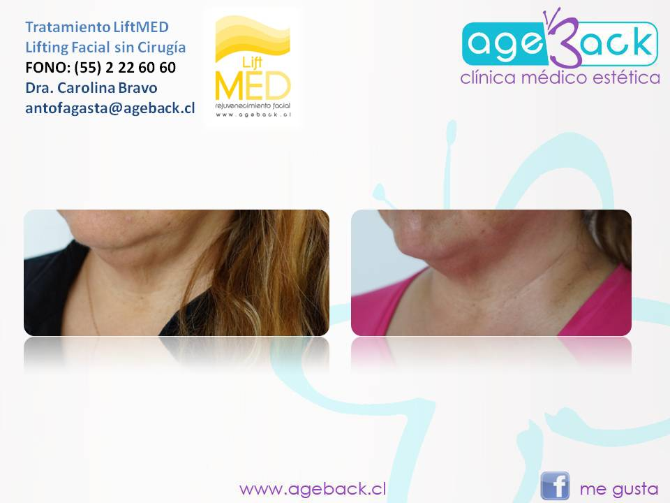 LiftMED AgeBack Antofagasta 01