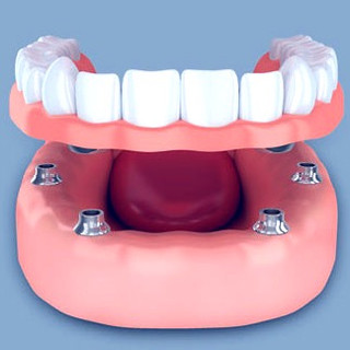implant-supported-dentures-model-1_edite