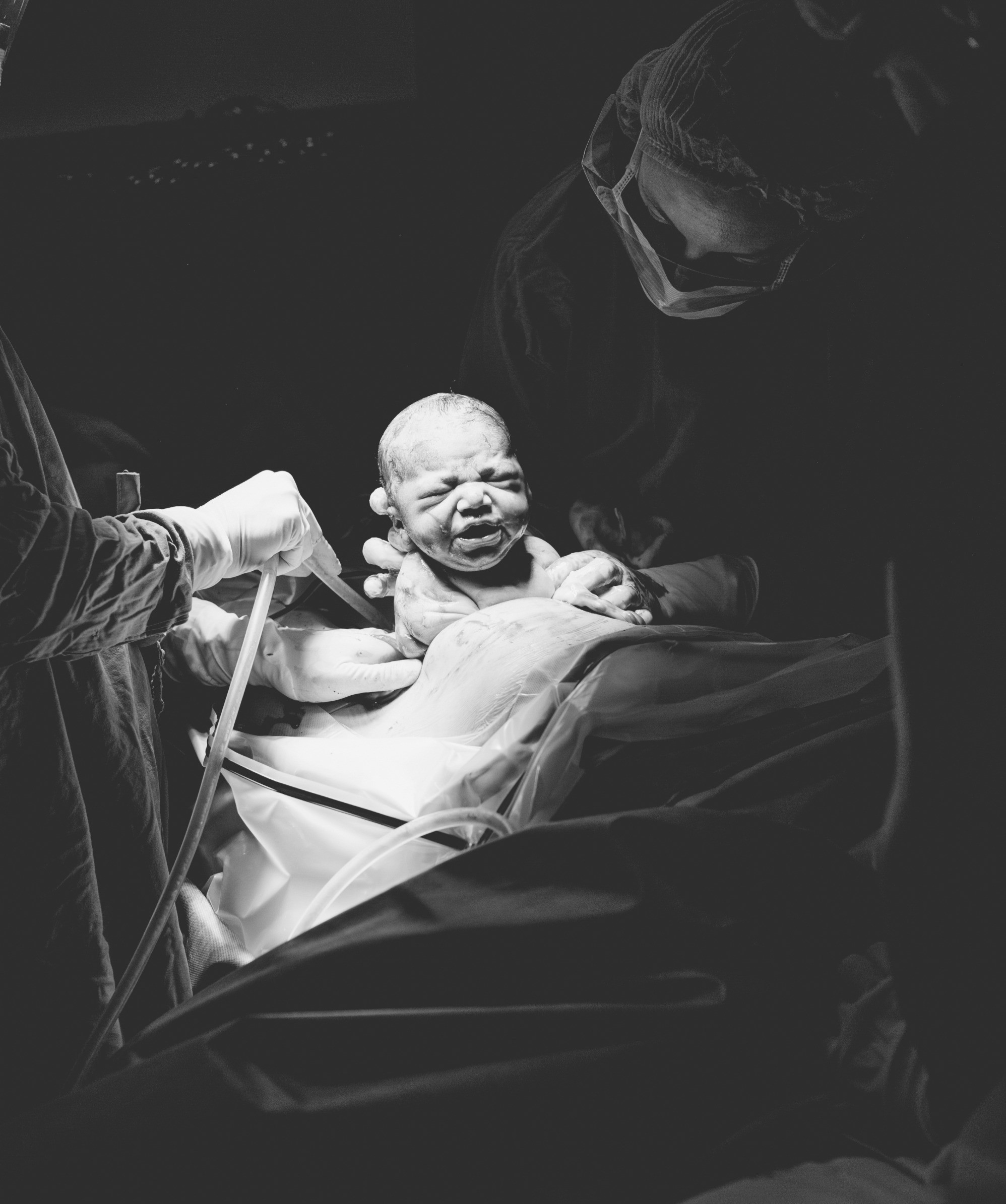 C-Section Birth Package