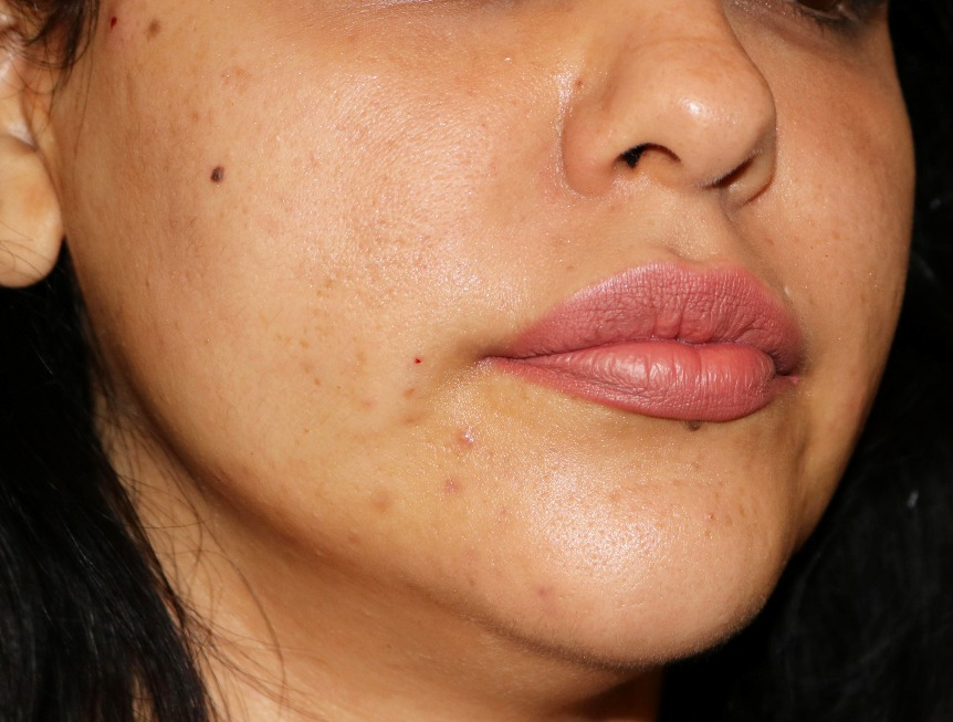 After PDO Thread Lift on cheeks