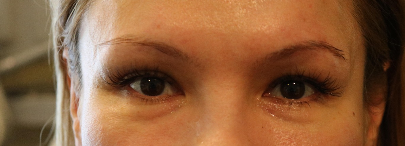 After Left Eye Brow Lift PDO thread
