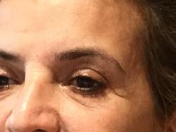 Eyelid and Brow bone Before