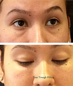 Before and After Tear Trough filling
