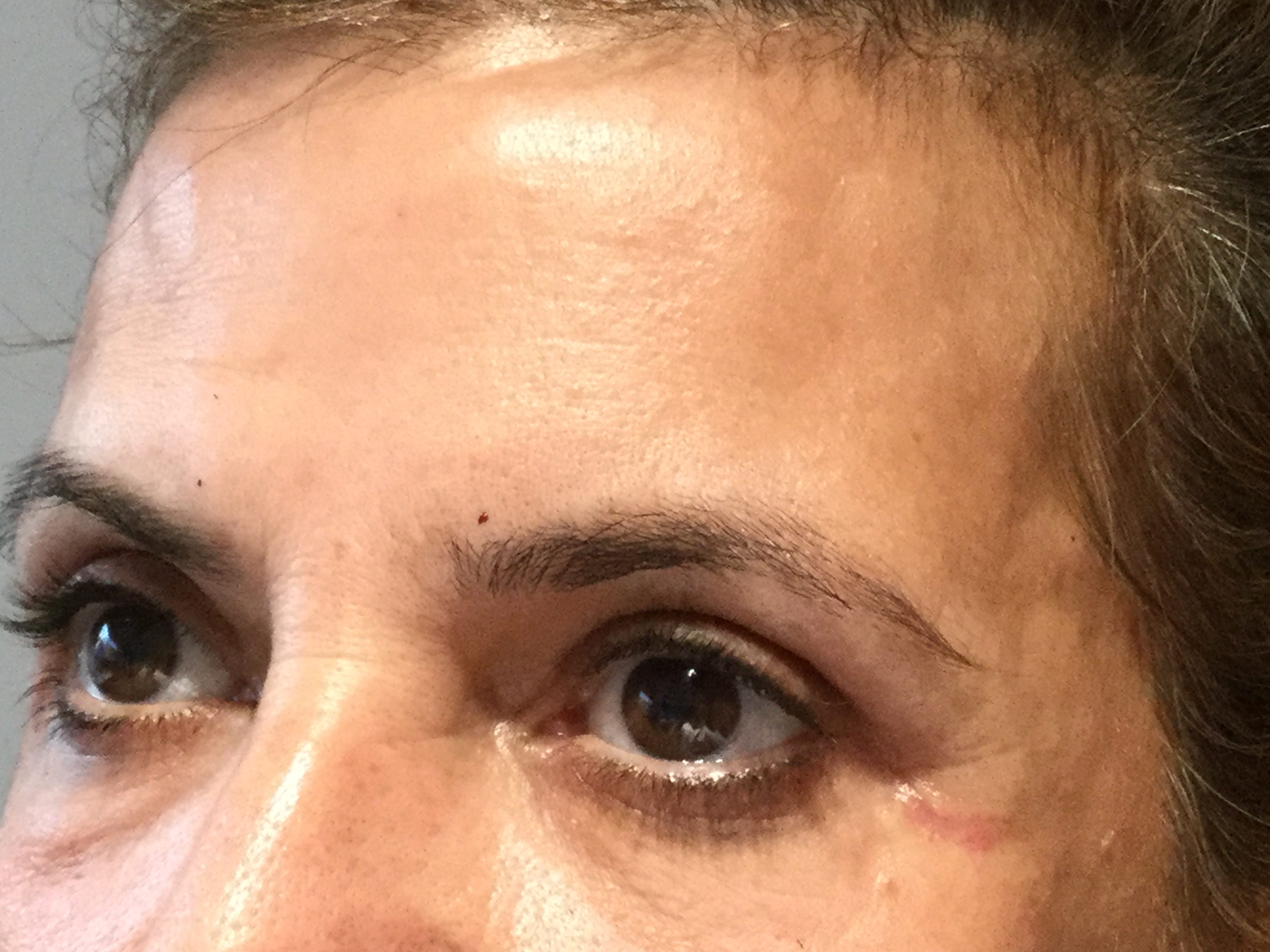 Eyelid and brow bone after
