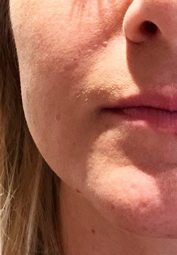 superficial smile line after