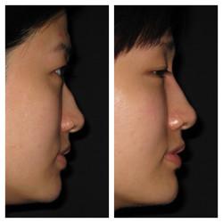 bridge of nose elevation