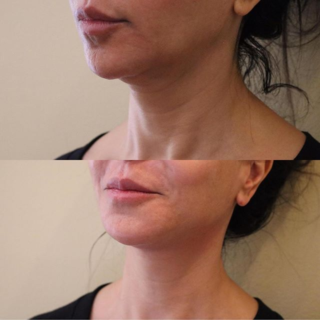 PDO Thread Neck Lift