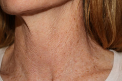 Neck Lines after