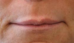 Very thin Lips before