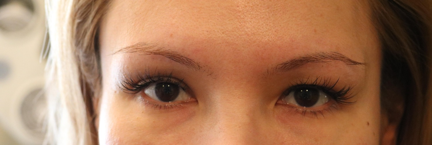 Before Left Eye Brow Lift PDO thread