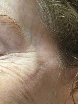 Extensive crows feet before