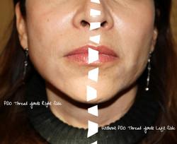 Thread lift split face