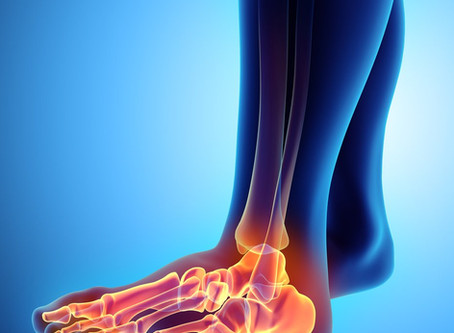 Don't Fight Foot Pain: Avoiding proper diagnosis can lead to more damage… and a boot