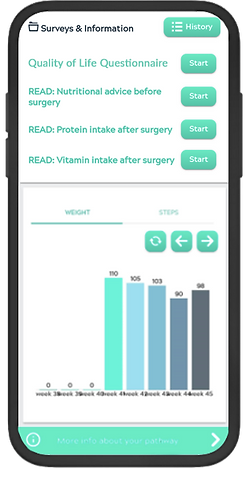 moveUP weightloss surgery care overview.