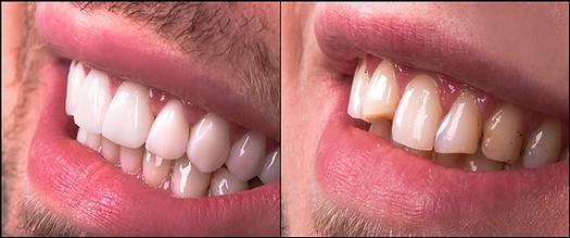 Dental Veneers White Man.rev.png