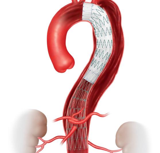 胸部解離性大動脈瘤に対するステントグラフト内挿術