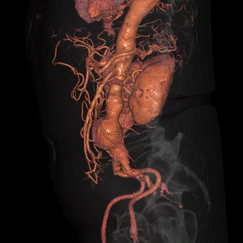 腹部大動脈瘤の例