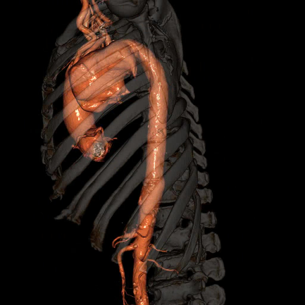 胸部大動脈瘤の例