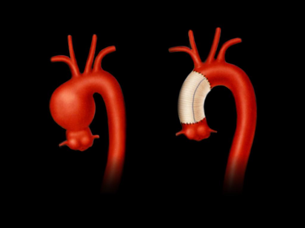 上行大動脈瘤ー上行置換術