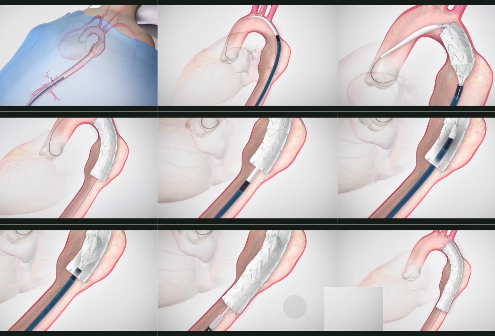 胸部ステントグラフト内挿術の手順
