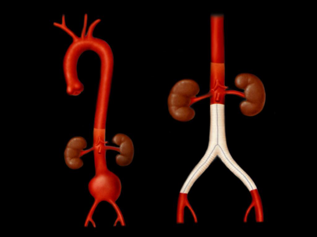 腹部大動脈瘤ー腹部大動脈人工血管置換術