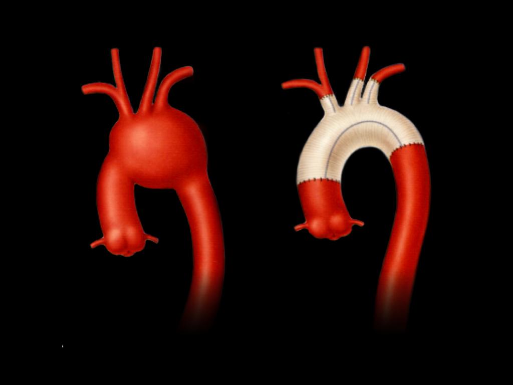 弓部大動脈瘤ー弓部置換術