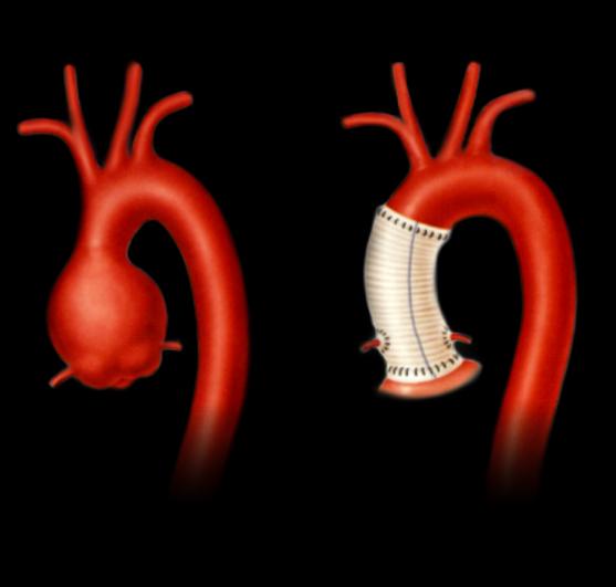 大動脈弁輪拡張症ー大動脈基部置換術