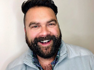 I Got Botox: Here's My Experience