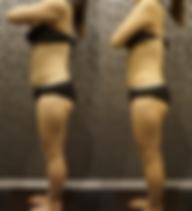 軟部組織リリース・筋膜リリース