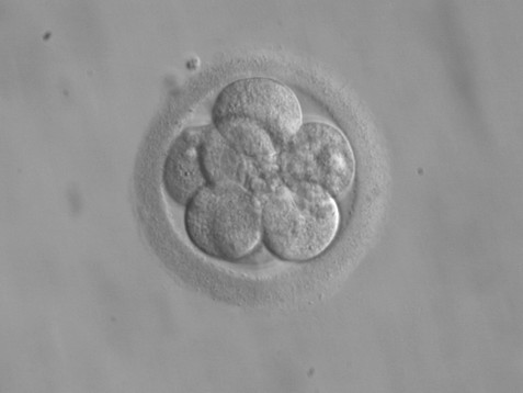 The Ambiguous Status of Frozen Embryos in Divorce Law