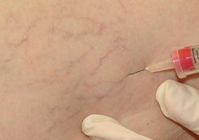 Frederico Linhares - Cirurgia vascular - Angiologista- Fortaleza