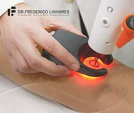 Tratamento de varizes com laser
