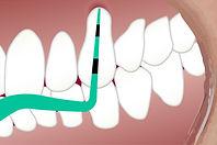 dental-3599725.jpg