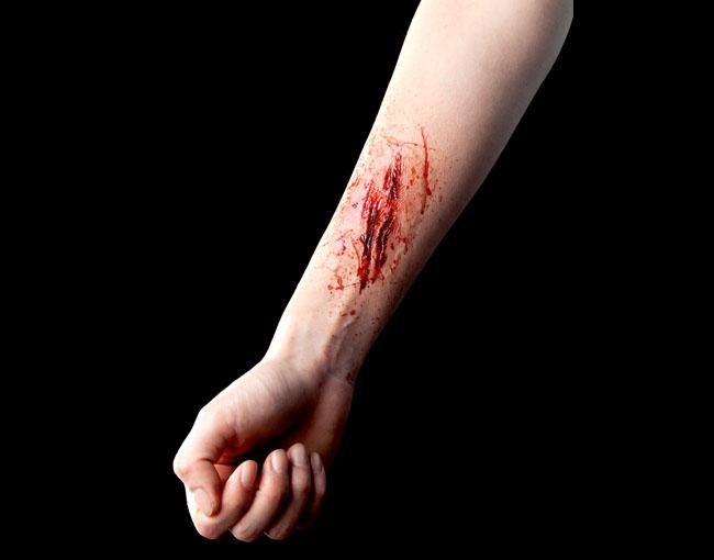 spfx wound.jpg