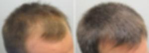 cabelo 4.jpg